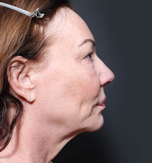Neck Lift Gallery - Patient 14089541 - Image 5