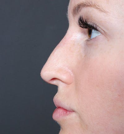 Non-Surgical Rhinoplasty Gallery - Patient 14089543 - Image 6