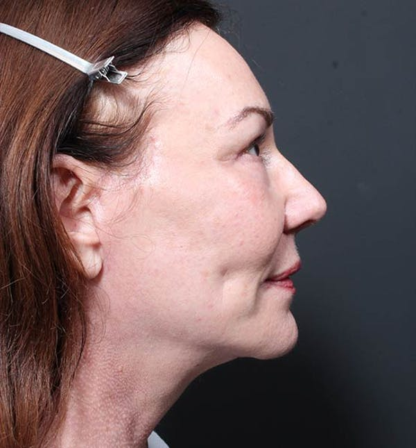 Neck Lift Gallery - Patient 14089541 - Image 6