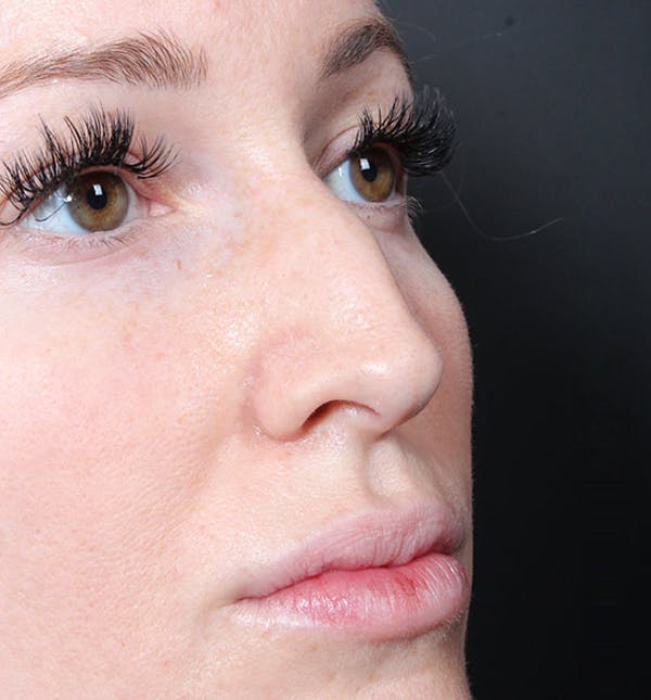 Non-Surgical Rhinoplasty Gallery - Patient 14089543 - Image 7