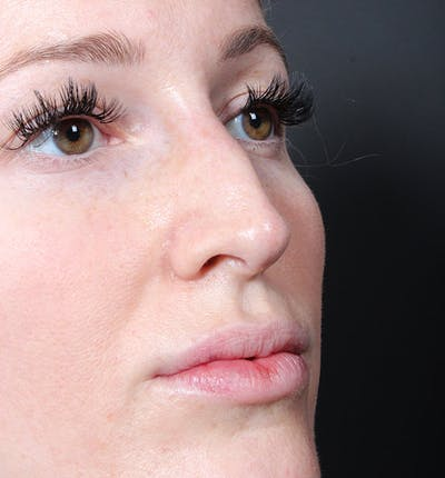 Non-Surgical Rhinoplasty Gallery - Patient 14089543 - Image 8
