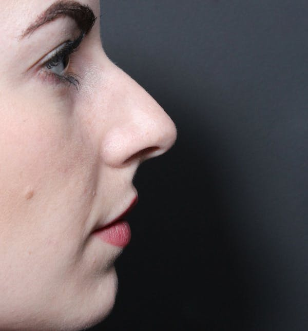 Rhinoplasty Gallery - Patient 14089547 - Image 5