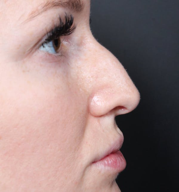 Non-Surgical Rhinoplasty Gallery - Patient 14089543 - Image 9