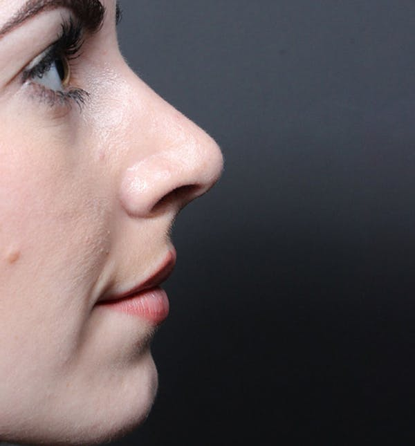 Rhinoplasty Gallery - Patient 14089547 - Image 6