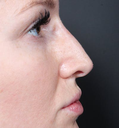 Non-Surgical Rhinoplasty Gallery - Patient 14089543 - Image 10