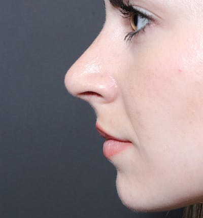 Rhinoplasty Gallery - Patient 14089547 - Image 8