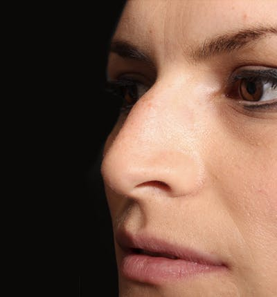Non-Surgical Rhinoplasty Gallery - Patient 14089549 - Image 1
