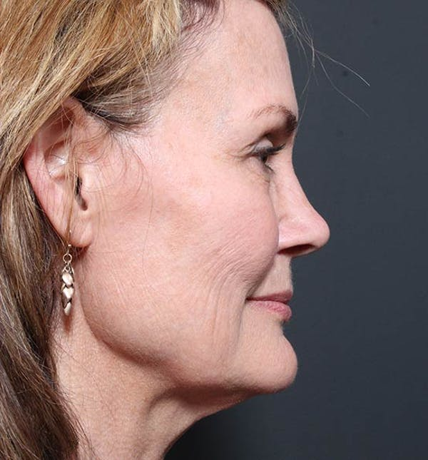 Neck Lift Gallery - Patient 14089546 - Image 5