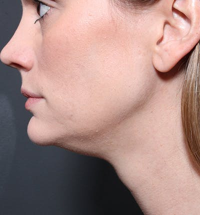 Neck Liposuction Gallery - Patient 14089548 - Image 1