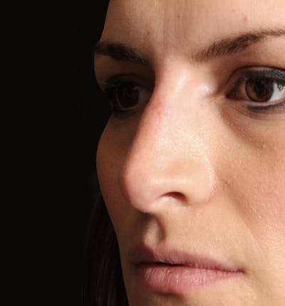 Non-Surgical Rhinoplasty Gallery - Patient 14089549 - Image 2