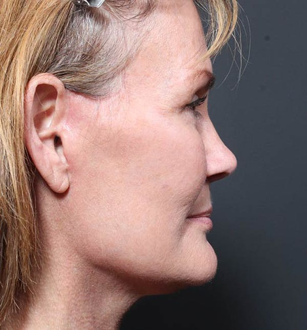 Neck Lift Gallery - Patient 14089546 - Image 6