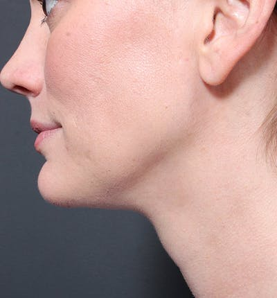 Neck Liposuction Gallery - Patient 14089548 - Image 2