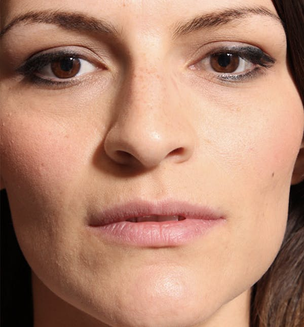 Non-Surgical Rhinoplasty Gallery - Patient 14089549 - Image 3