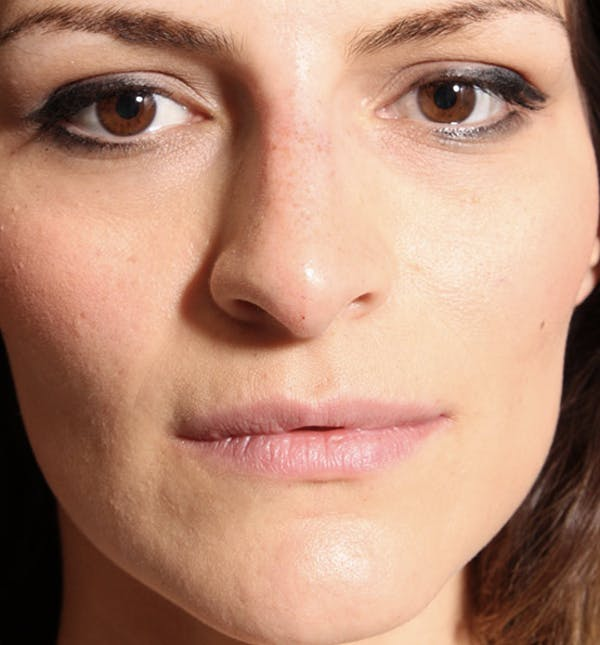 Non-Surgical Rhinoplasty Gallery - Patient 14089549 - Image 4
