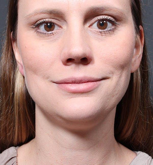 Neck Liposuction Gallery - Patient 14089548 - Image 3