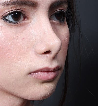 Rhinoplasty Gallery - Patient 14089550 - Image 1