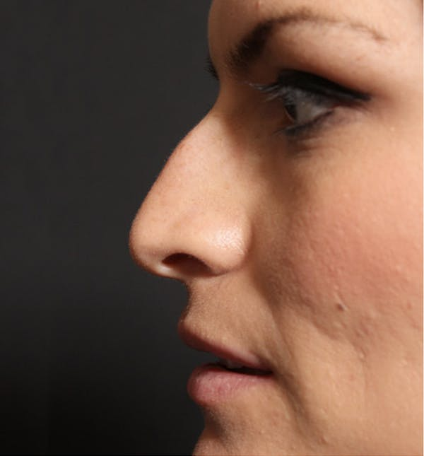 Non-Surgical Rhinoplasty Gallery - Patient 14089549 - Image 5