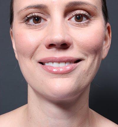 Neck Liposuction Gallery - Patient 14089548 - Image 4