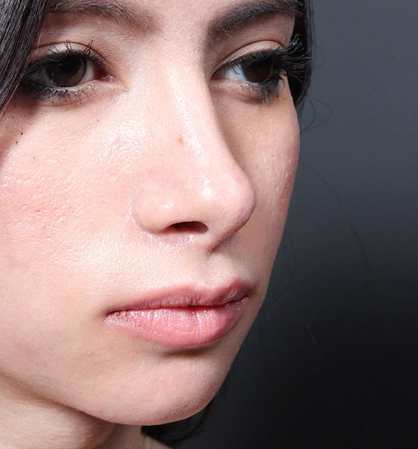 Rhinoplasty Gallery - Patient 14089550 - Image 2