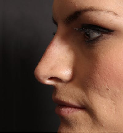 Non-Surgical Rhinoplasty Gallery - Patient 14089549 - Image 6