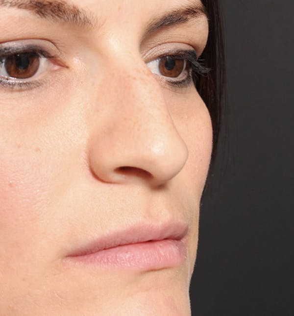 Non-Surgical Rhinoplasty Gallery - Patient 14089549 - Image 7