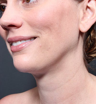 Neck Liposuction Gallery - Patient 14089548 - Image 6