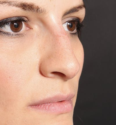 Non-Surgical Rhinoplasty Gallery - Patient 14089549 - Image 8