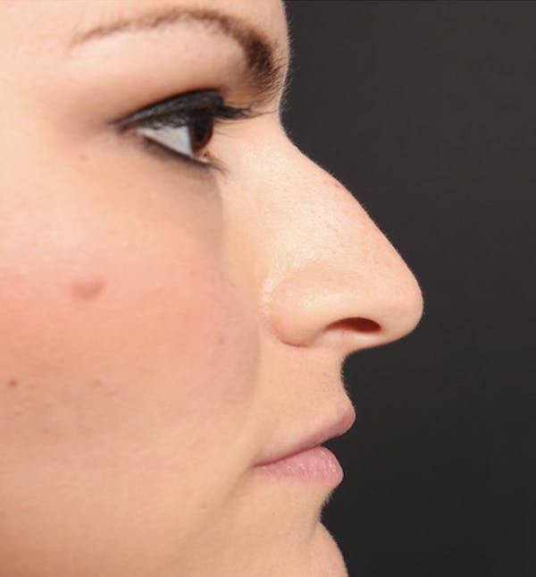 Non-Surgical Rhinoplasty Gallery - Patient 14089549 - Image 9