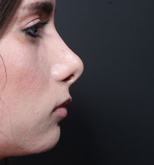 Rhinoplasty Gallery - Patient 14089550 - Image 5