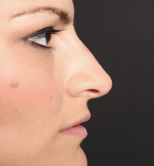 Non-Surgical Rhinoplasty Gallery - Patient 14089549 - Image 10
