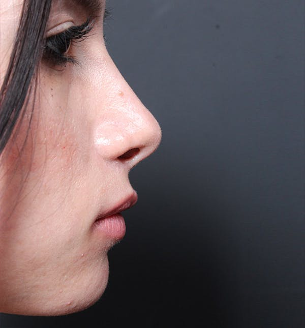 Rhinoplasty Gallery - Patient 14089550 - Image 6