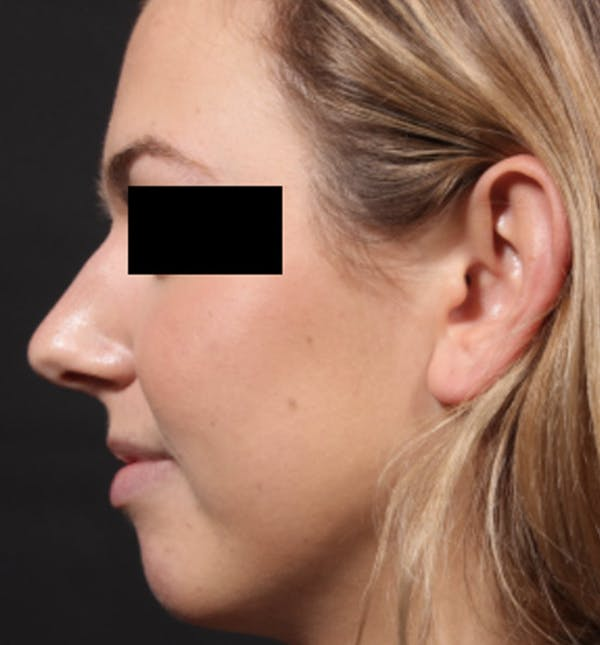 Non-Surgical Rhinoplasty Gallery - Patient 14089551 - Image 1
