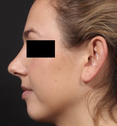 Non-Surgical Rhinoplasty Gallery - Patient 14089551 - Image 2