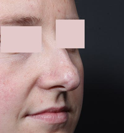 Rhinoplasty Gallery - Patient 14089554 - Image 1
