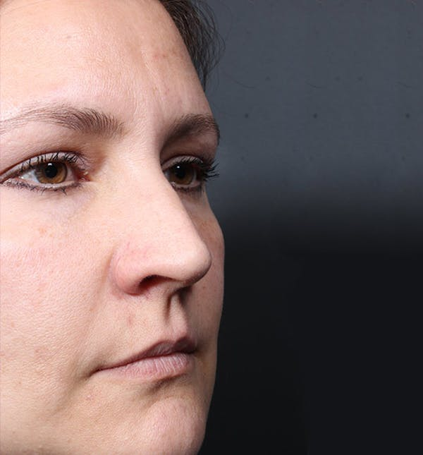 Non-Surgical Rhinoplasty Gallery - Patient 14089552 - Image 1