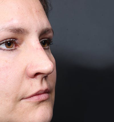 Non-Surgical Rhinoplasty Gallery - Patient 14089552 - Image 2
