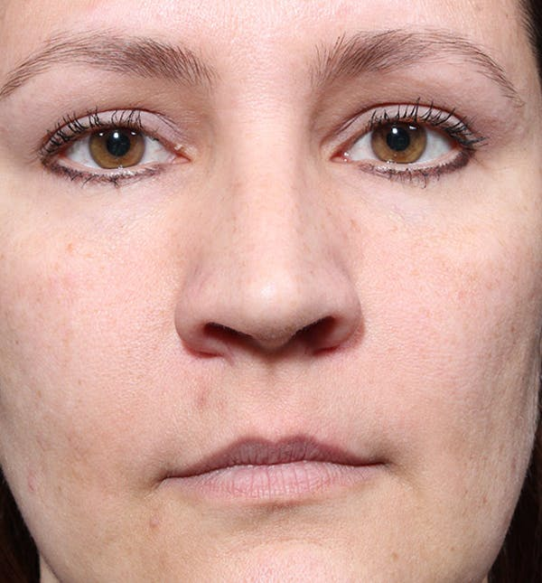 Non-Surgical Rhinoplasty Gallery - Patient 14089552 - Image 3