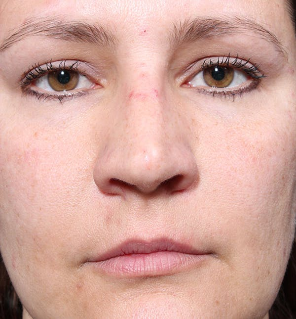 Non-Surgical Rhinoplasty Gallery - Patient 14089552 - Image 4