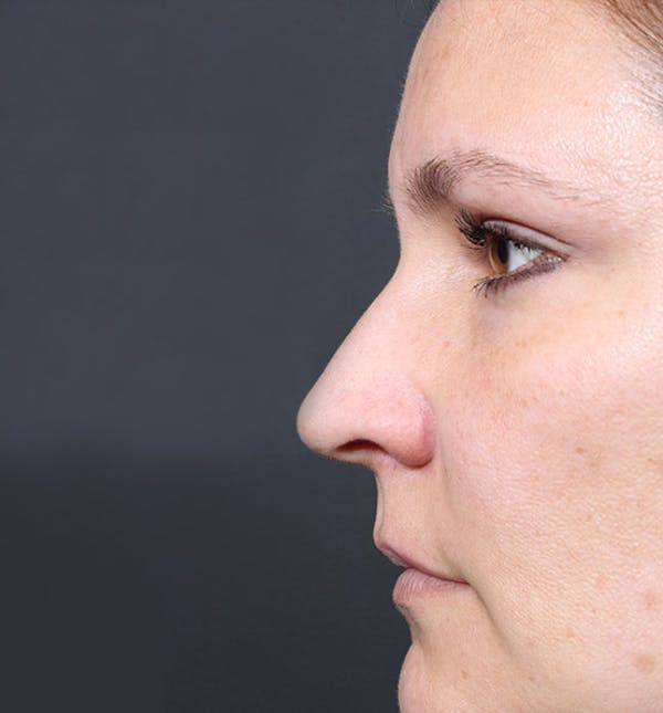 Non-Surgical Rhinoplasty Gallery - Patient 14089552 - Image 5