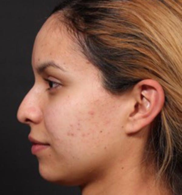 Non-Surgical Rhinoplasty Gallery - Patient 14089553 - Image 1