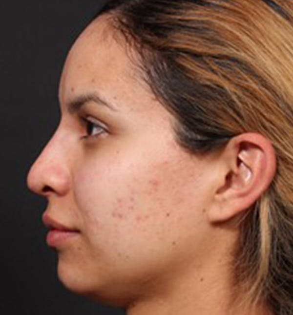 Non-Surgical Rhinoplasty Gallery - Patient 14089553 - Image 2