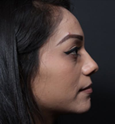Non-Surgical Rhinoplasty Gallery - Patient 14089555 - Image 1