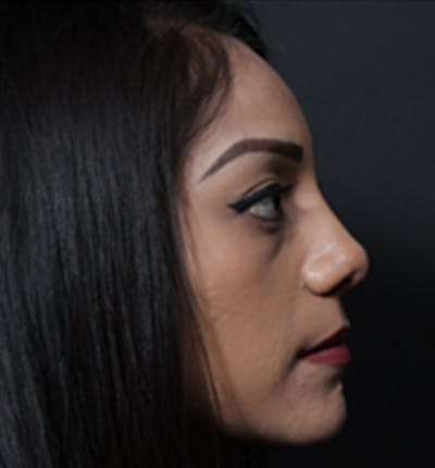 Non-Surgical Rhinoplasty Gallery - Patient 14089555 - Image 2