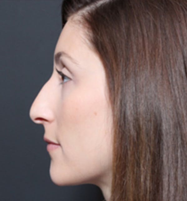 Non-Surgical Rhinoplasty Gallery - Patient 14089556 - Image 1
