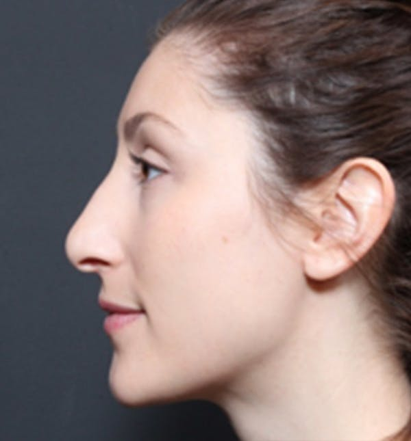 Non-Surgical Rhinoplasty Gallery - Patient 14089556 - Image 2
