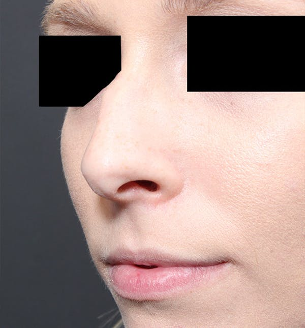 Rhinoplasty Gallery - Patient 14089562 - Image 1