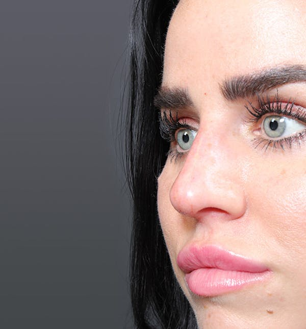 Non-Surgical Rhinoplasty Gallery - Patient 14089560 - Image 6