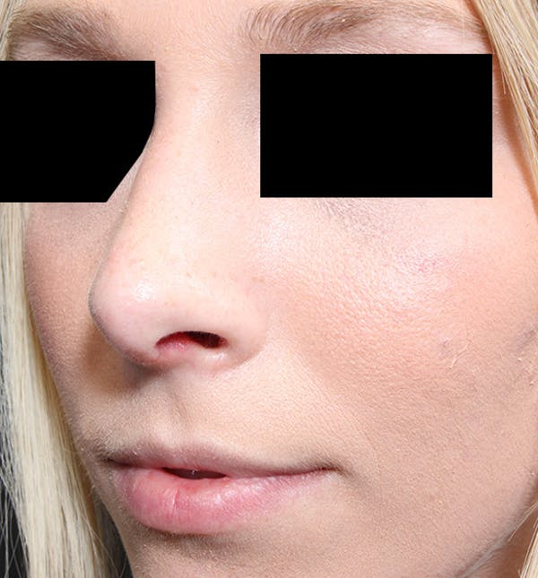 Rhinoplasty Gallery - Patient 14089562 - Image 2