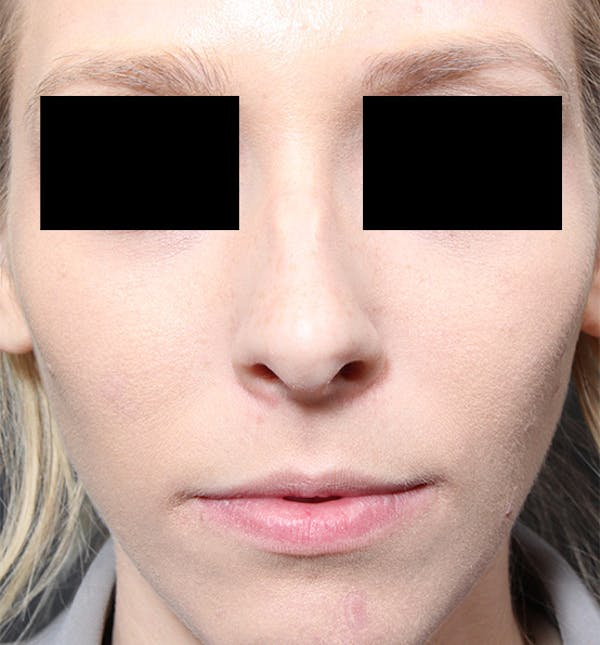 Rhinoplasty Gallery - Patient 14089562 - Image 3