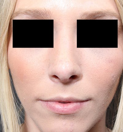 Rhinoplasty Gallery - Patient 14089562 - Image 4